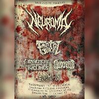 UKSF Presents: Neuroma, Foetal Juice +3 1/9/18